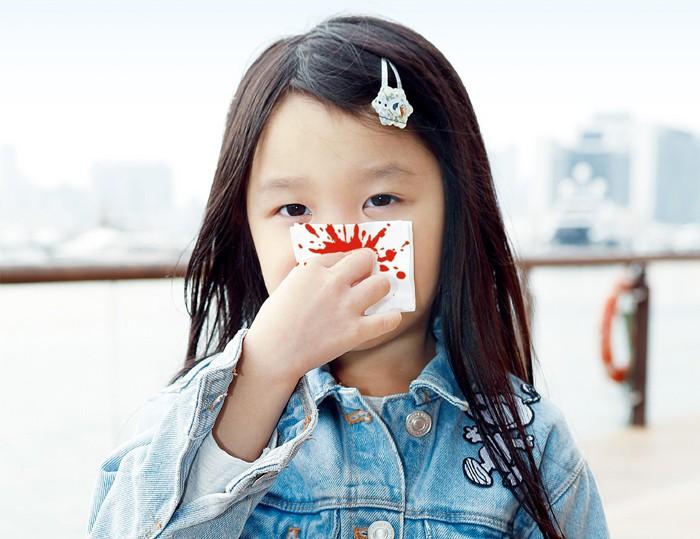 點解孩子經常流鼻血?