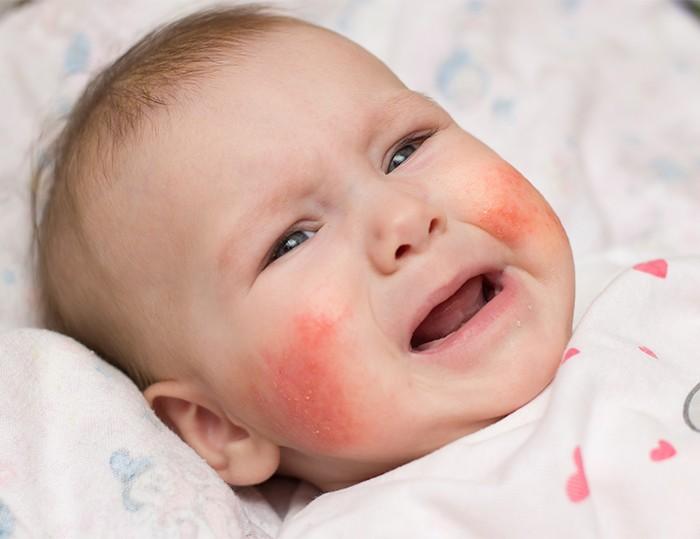 有濕疹 戒母乳?