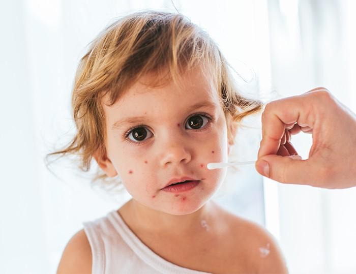 預防水痘,家長有乜要注意?