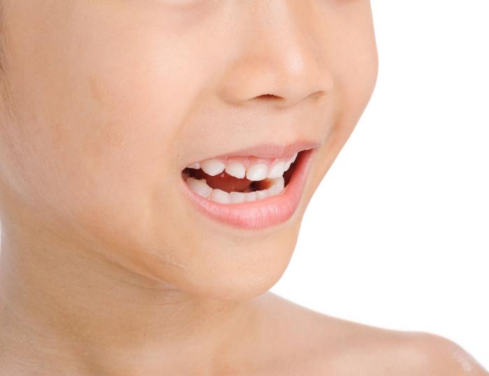 有小兒磨牙?中醫幫到你