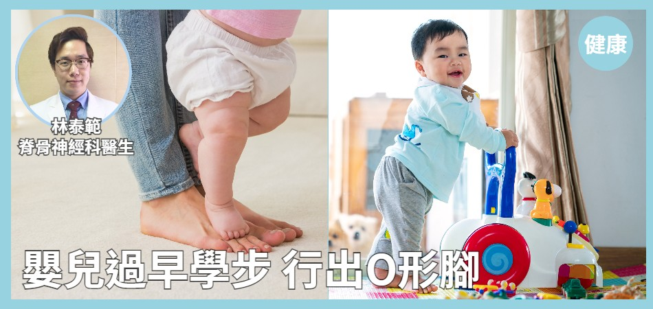 嬰兒過早學步 行出O形腳
