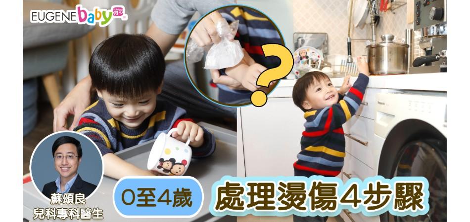 0至4歲最易被燙傷|兒科醫生教你燙傷處理4步驟